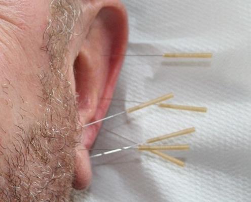 Ohrakupunktur vom Heilpraktiker